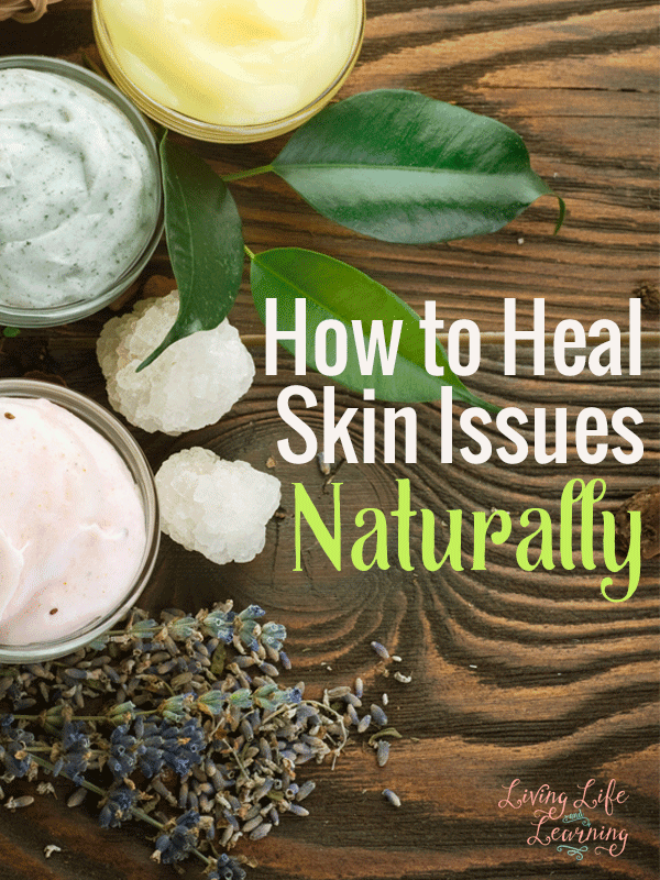 How to Heal Skin Issues Naturally #PureHazelwood